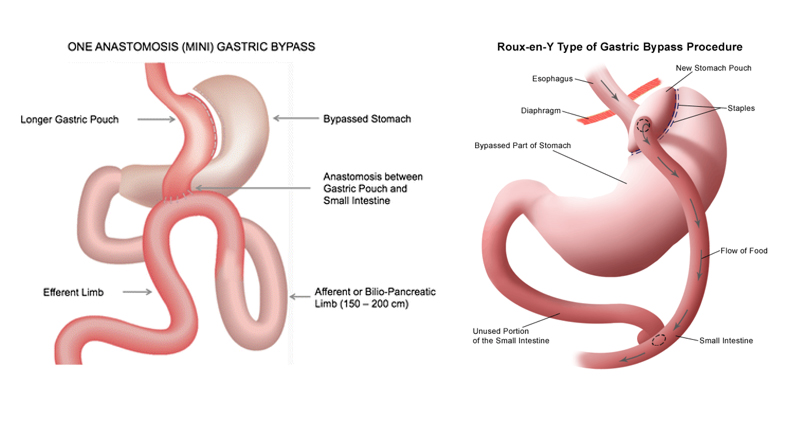 Mini Gastric Bypass Surgery diagram