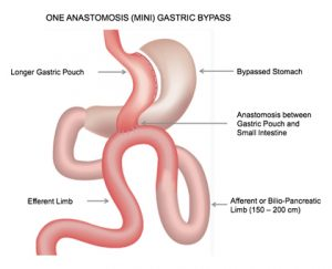 mini gastric bypass