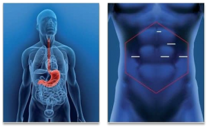 gastric sleeve incision points