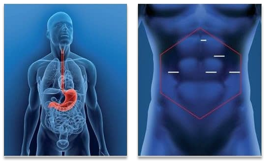 Gastric Bypass Surgery in Melbourne