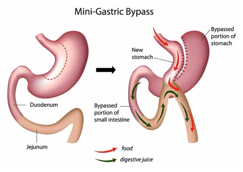 mini gastric bypass diagram