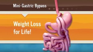 mini gastric bypass overlay