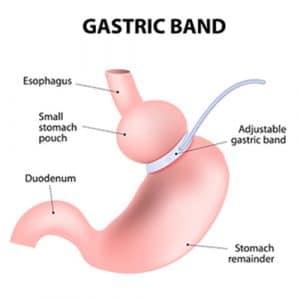 gastric band - lapband