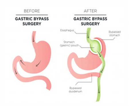 Revision Surgery is often Gastric Bypass Surgery