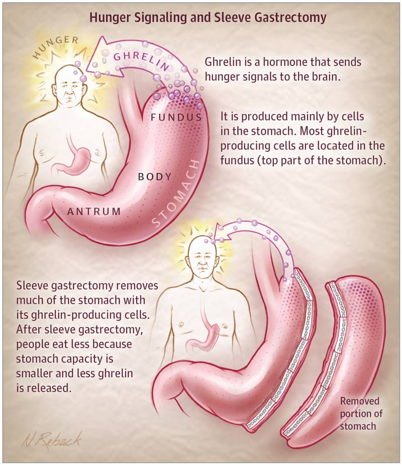 Hunger Signalling and Sleeve Gastrectomy - source jamanetwork.com
