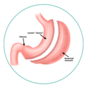 Gastric Sleeve Melbourne - Centre For weight Loss
