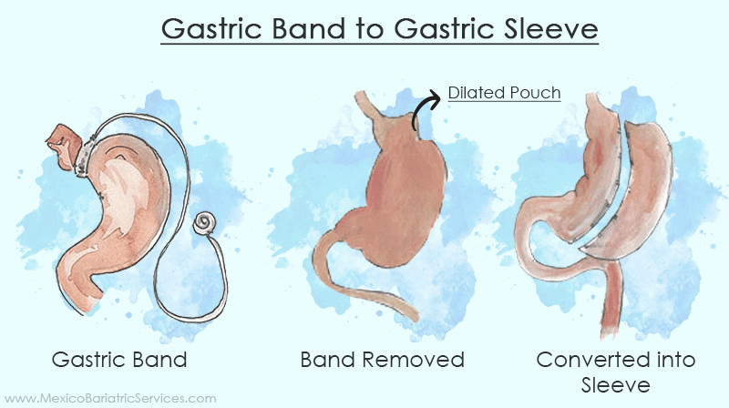 gastric band to sleeve