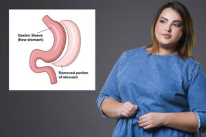 how much stomach is removed gastric sleeve