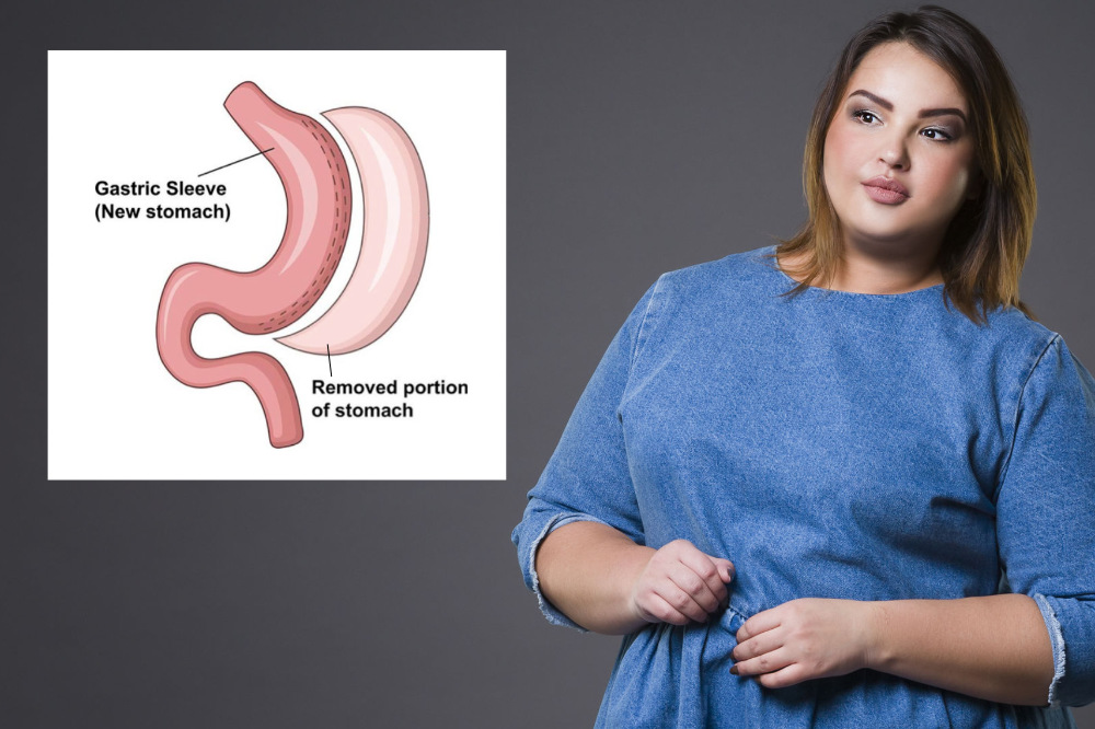 How Much Stomach is REMOVED in Gastric Sleeve?